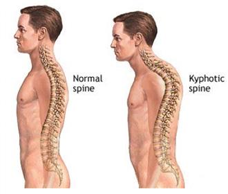 athletic posture