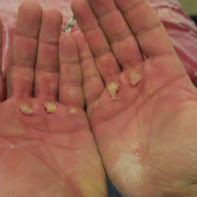 weightlifting blisters